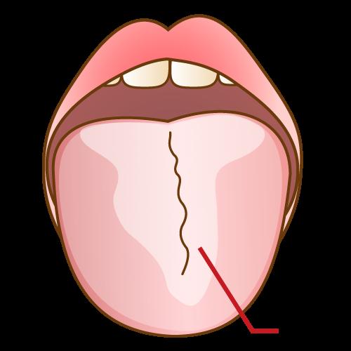 舌苔について