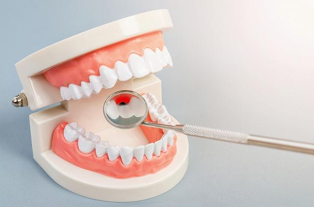 口臭のほとんどは歯科治療で改善します