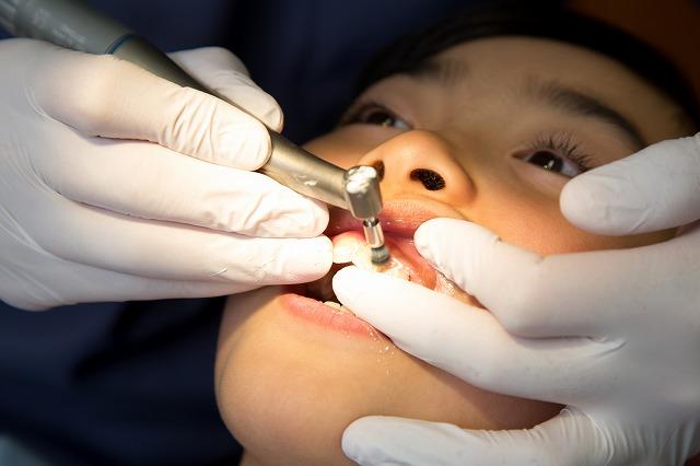 歯石除去・PMTC