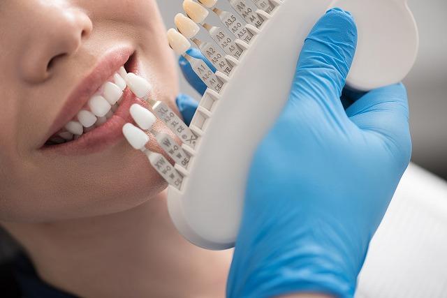 国家資格を持つ歯科衛生士が担当するので、安全・安心