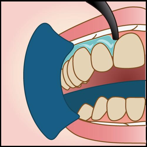 歯ぐきのケア